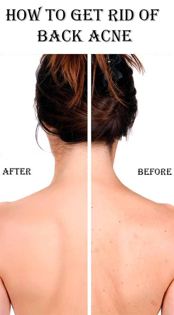 e6daad1cb0cbe How to Get Rid of Back Acne | Stylish Belles